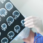 Traumatic Brain Injury Claim