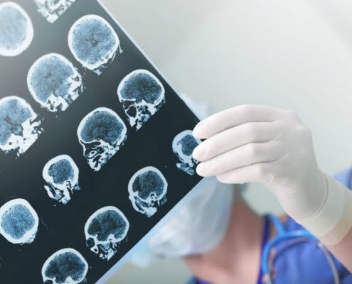 Traumatic Brain Injury Claim
