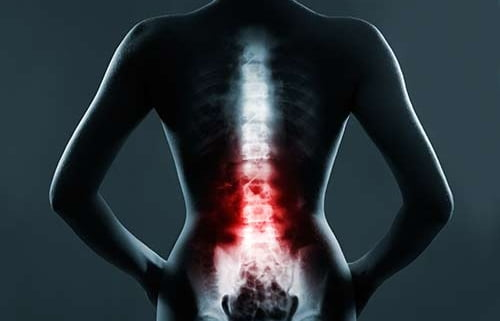 Spinal Cord Injuries as a Result of Negligence