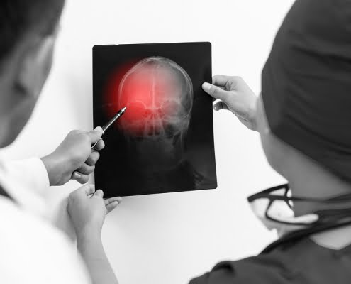 workman's compensation brain injury's in GA