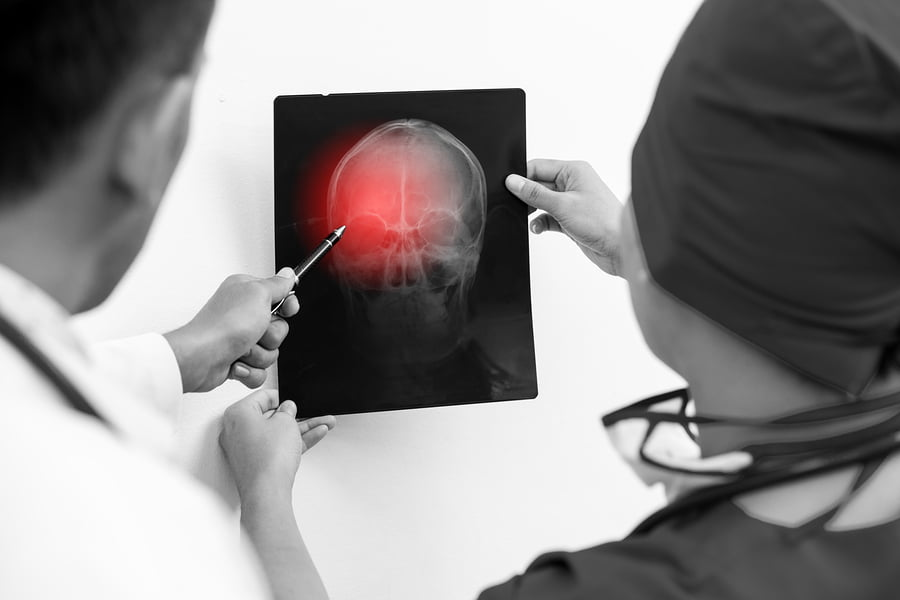 workman's compensation brain injury's in GA