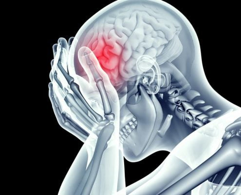 Brain Injury